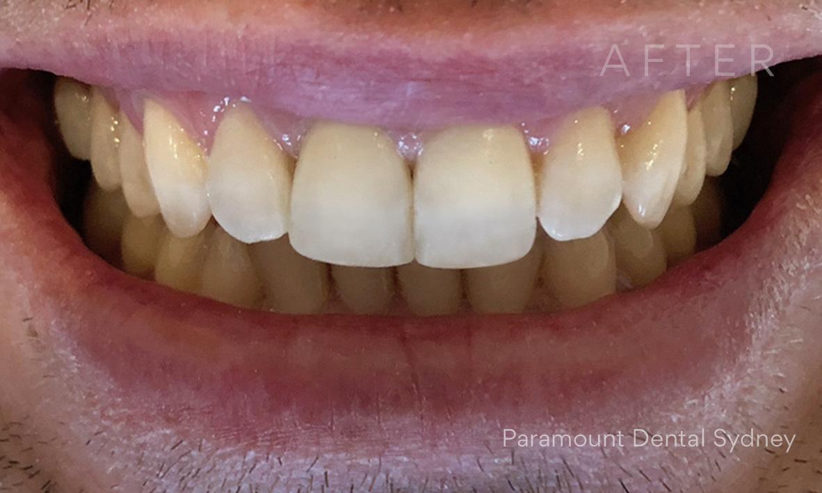After:  Composite Veneers  and  Dental Bonding