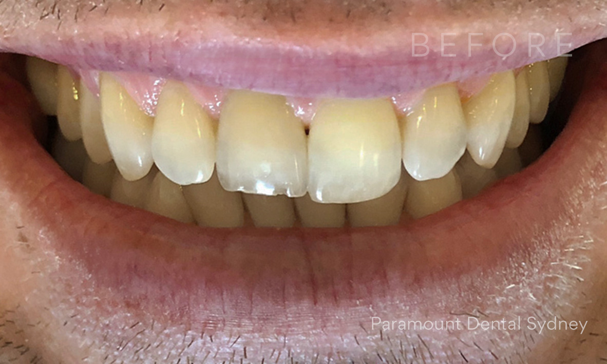 Before: Uneven Teeth