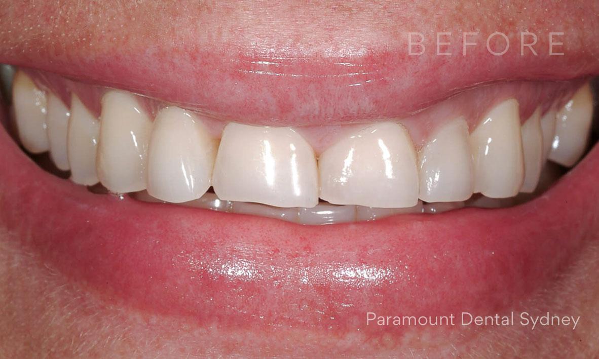 Before:  Worn Teeth