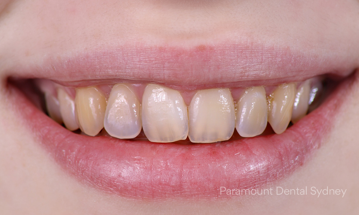 © Paramount Dental Sydney The 5 Signs of Ageing Oral Health 05.jpg