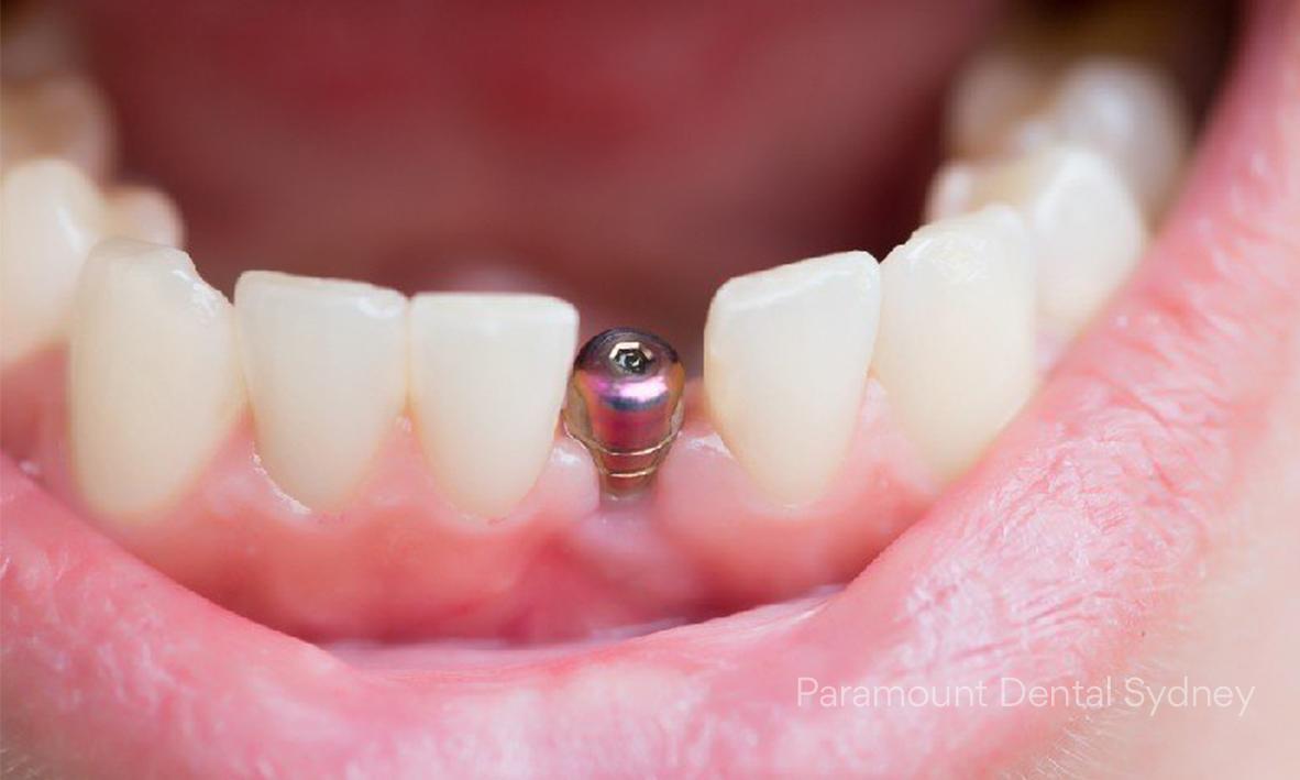 © Paramount Dental Sydney Smile Shopping 04.jpg