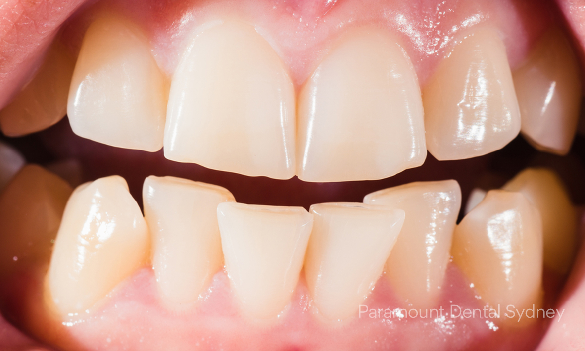 © Paramount Dental Sydney Smile Shopping 03.jpg