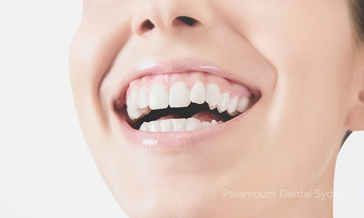 © Paramount Dental Sydney The 5 Signs of Aging Oral Health 04.jpg