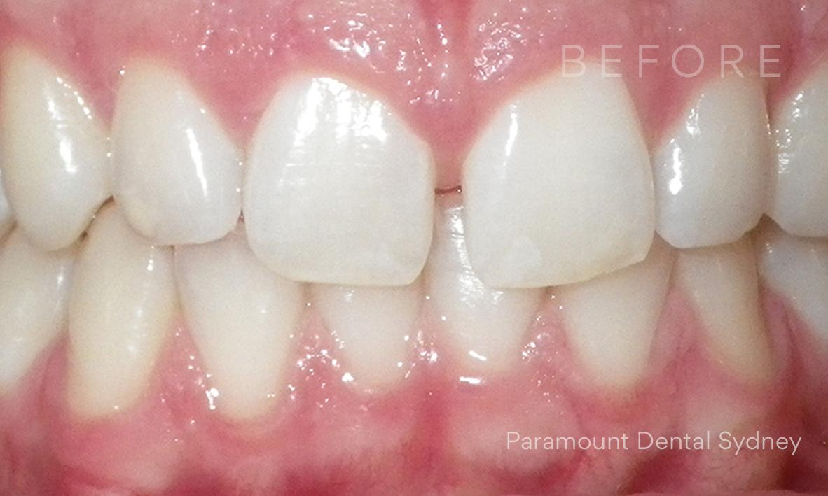 Before: Front Teeth Gap (Diastema) and  Crooked Teeth