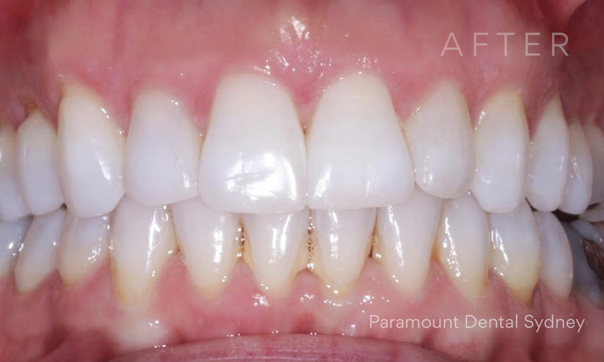 After:  Invisalign