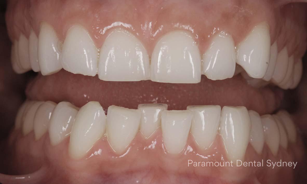 Crooked, Crowded Teeth - →