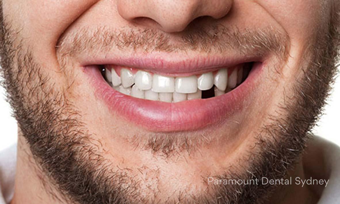Missing Teeth - →