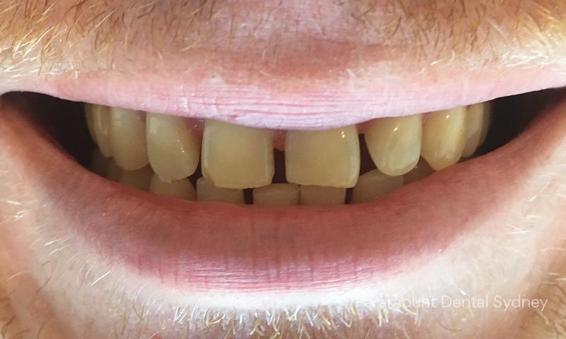 Spaced, Gappy Teeth - →