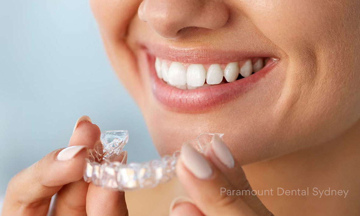Invisalign (Clear Braces) - Cosmetic Treatment for– Crooked, Crowded Teeth– Gummy Smile– Gappy, Spaced Teeth→