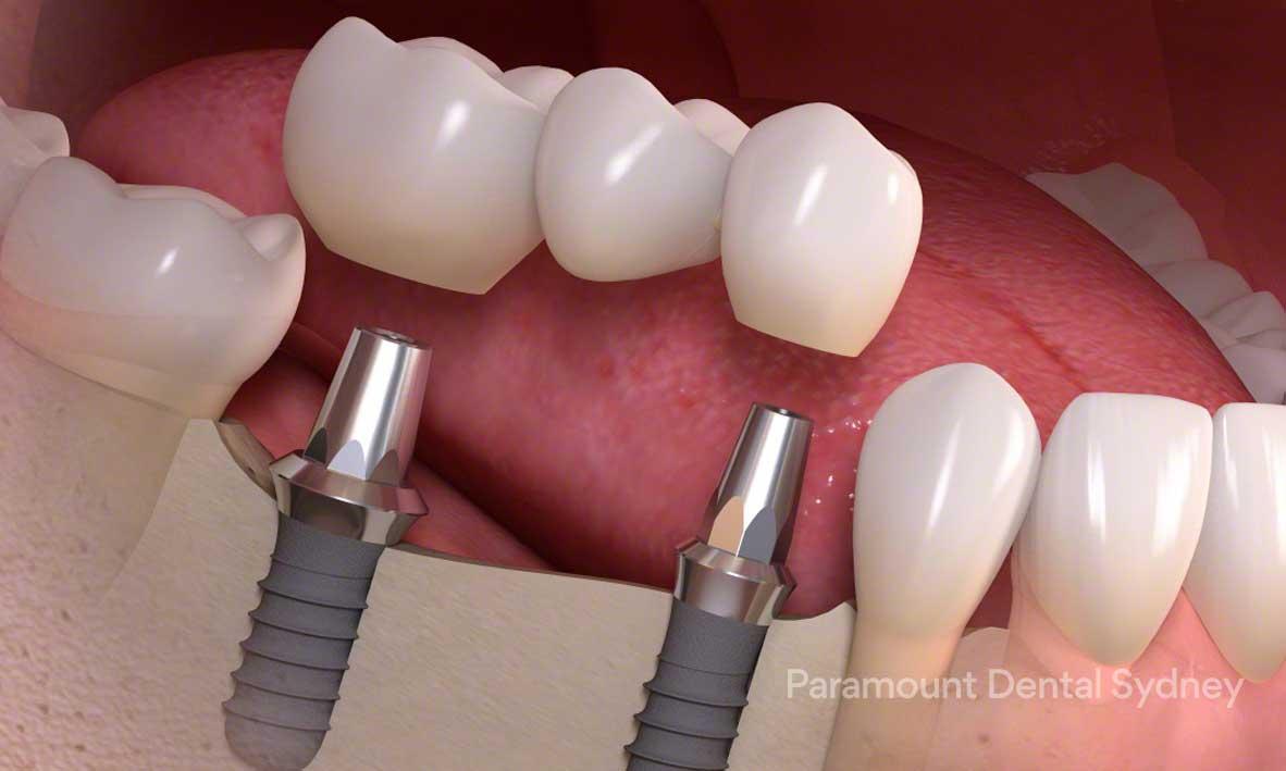 Dental Implants - Cosmetic Treatment for– Worn Teeth– Missing Teeth– Gappy, Spaced Teeth→