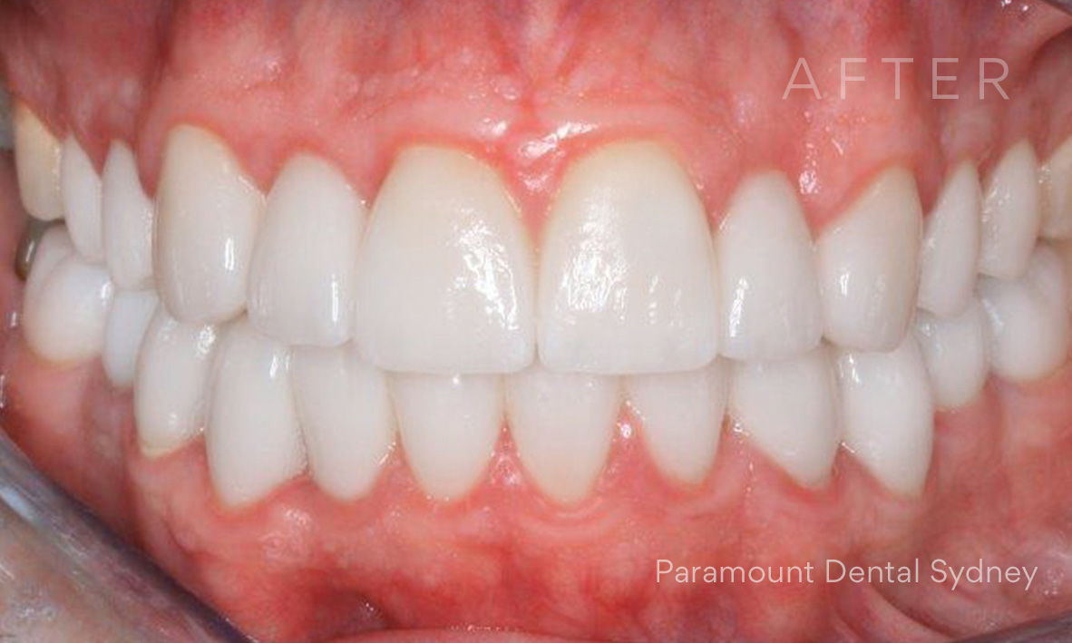After: Full mouth  porcelain veneers