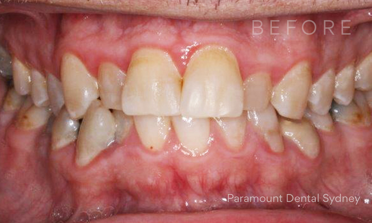 Before:  Discolouration ,  Crooked and misaligned teeth