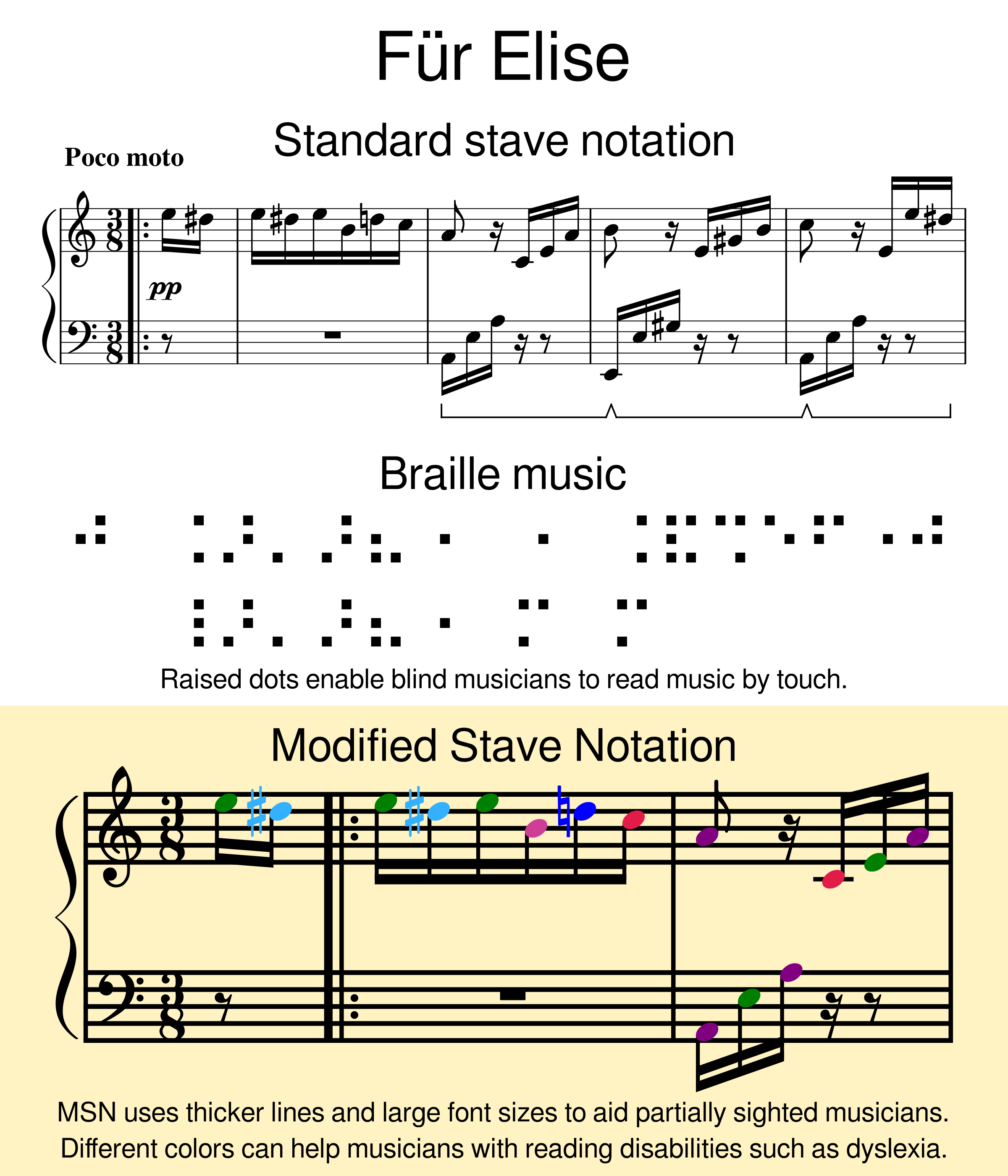 The opening bars of  Beethoven's Für Elise  in standard notation, Braille and MSN.