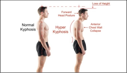 Kyphosis-Normal-vs-Hyper-700x404.jpg