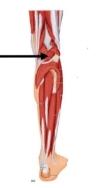 Popliteus muscle behind the knee