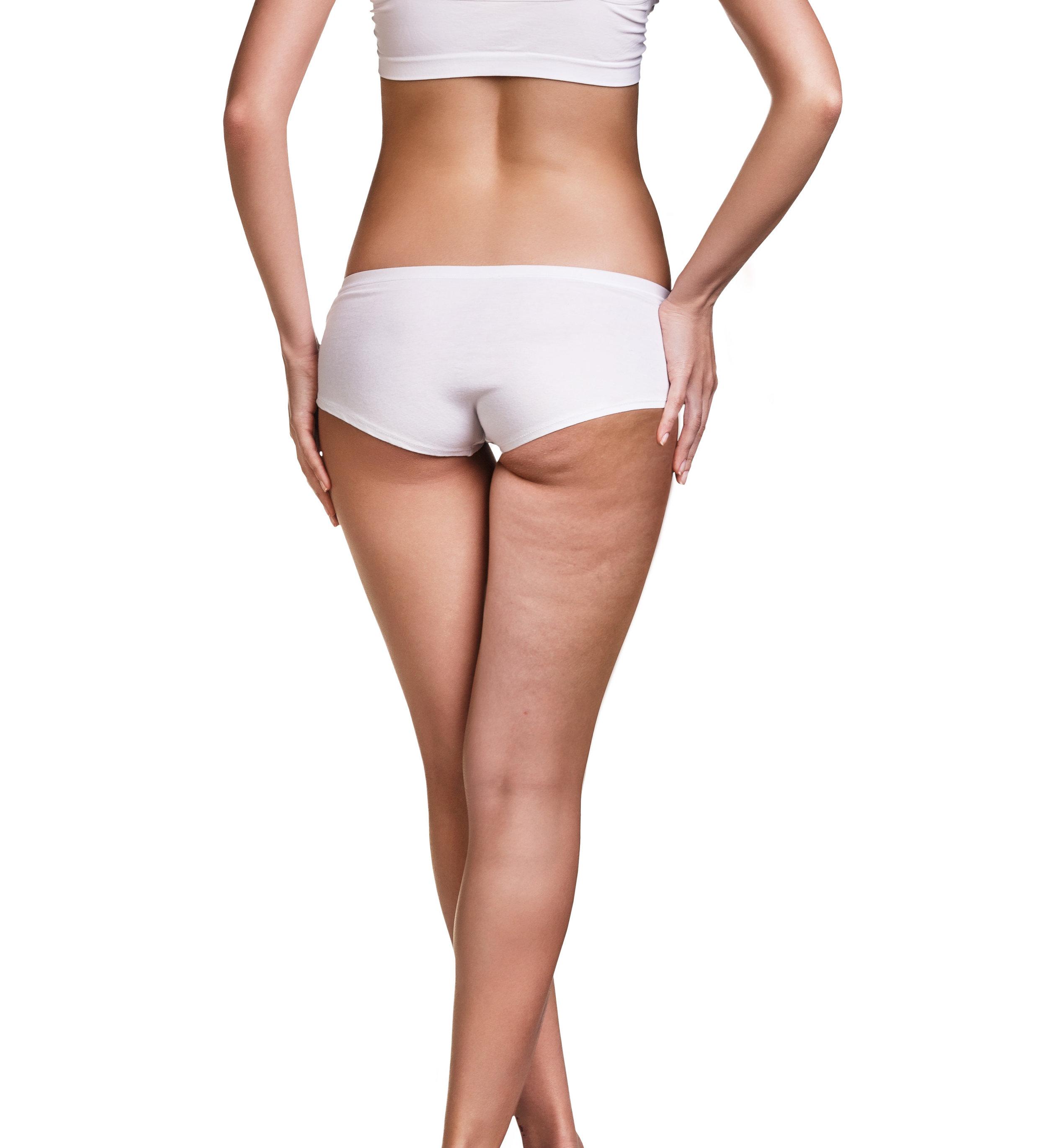 17 Cellulite Behandlung.jpg