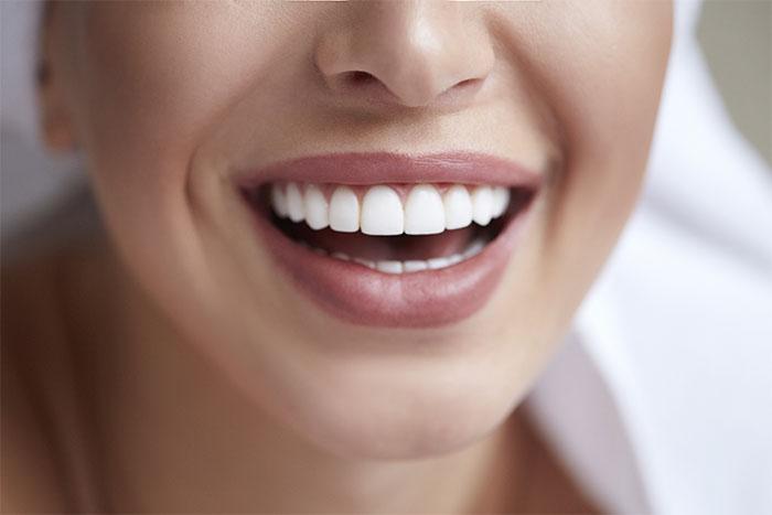 Cosmetic Dentistry Billings MT.jpg