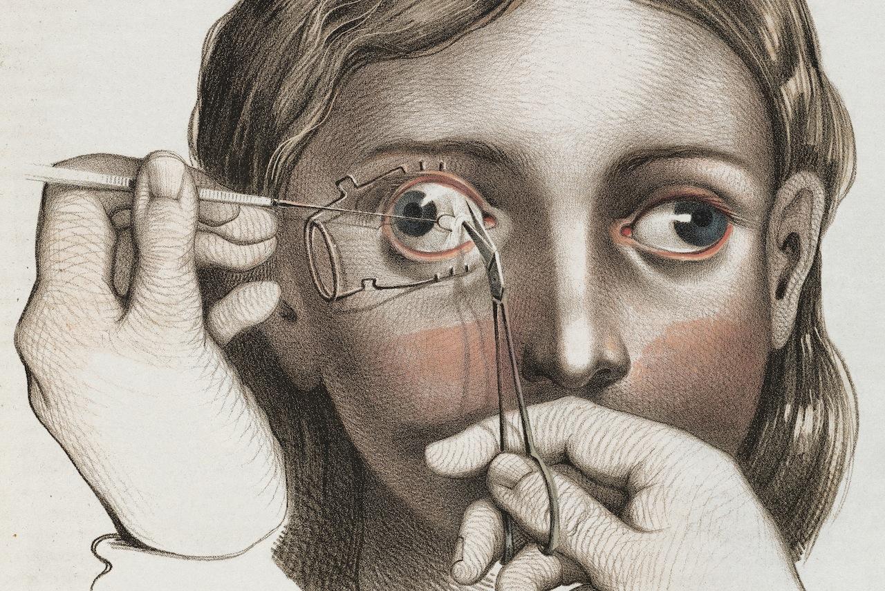 p81-82-surgery-to-correct-strabismus.jpg