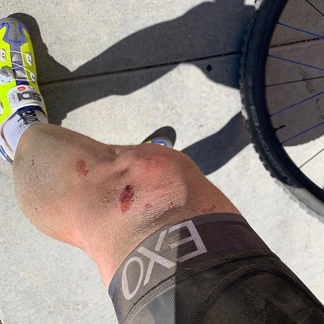 Not how I envisioned my Friday. Spent five hours at the ER with mild concussion, scrapes and bruises on my left side. The hope is probably the worst of it all. Glad my brand new Specialized helmet did it's job, even though I believe I was unconscious for 6mins. Don't recall riding down the rest of the trail, as I viewed my gps signal that had me going on trails I wasn't familiar with. Time for a new helmet and riding outdoors in a few weeks. Have to take care of the brain! #concussions #cycling #mountainbiking #helmetssavelives #specialized