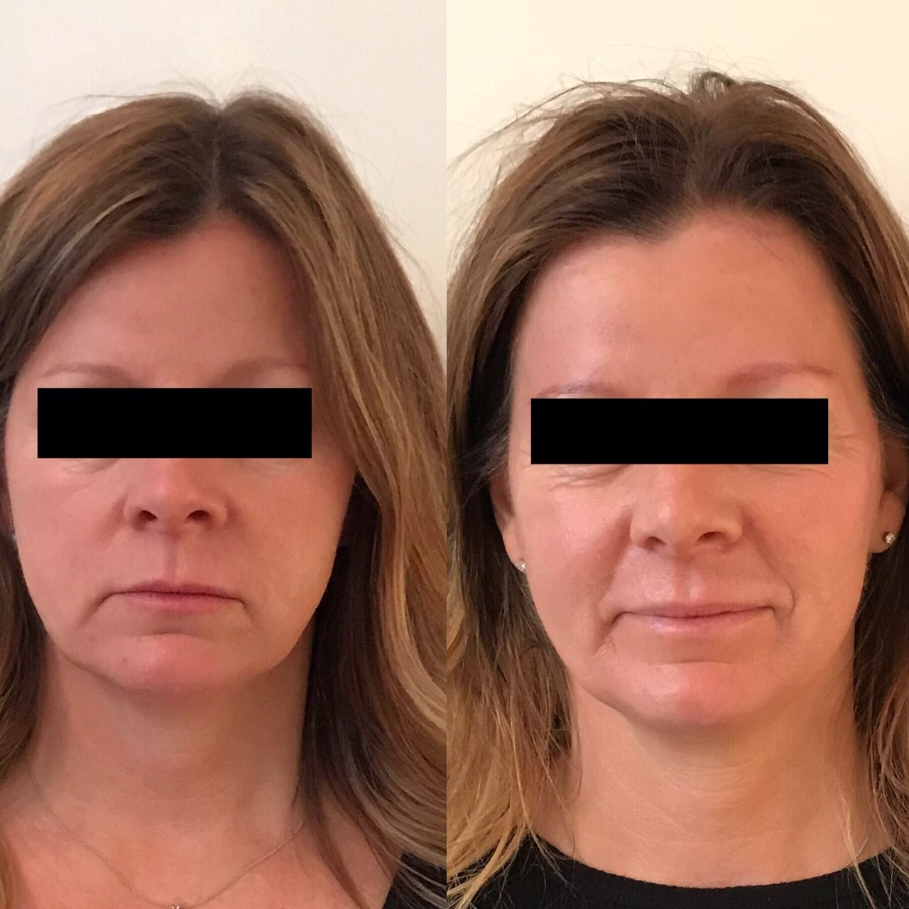 After receiving the radio frequency V-lifting facial, our client's skin looks so plump, hydrated, energized and healthy Our B&A was taken and shared with the permission of our client No filter, no photoshopped