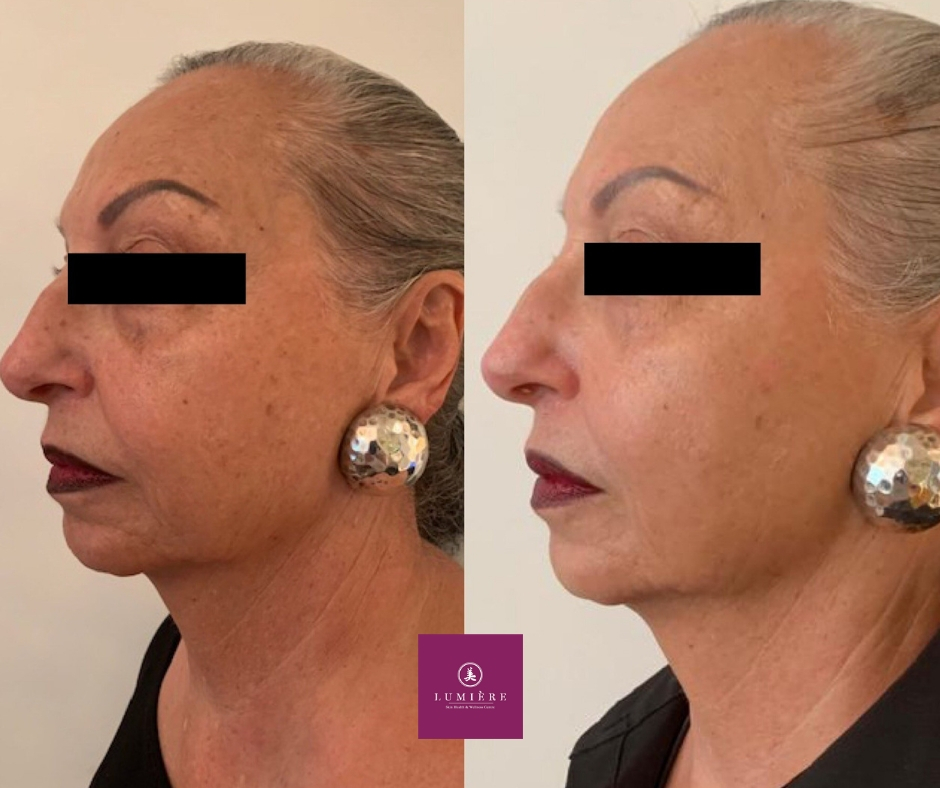 Get a face lift without going under the knife!  Our B&A was taken and shared with the permission of our client No filter, no photoshopped
