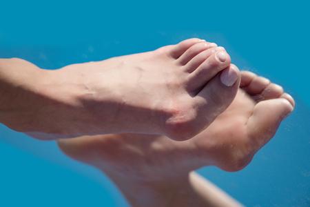 80421082_S_senior_woman_feet_bunion.jpg