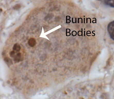 Bunina Bodies