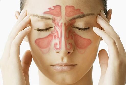 sinusitis_s1_woman_sinus_cavity.jpg