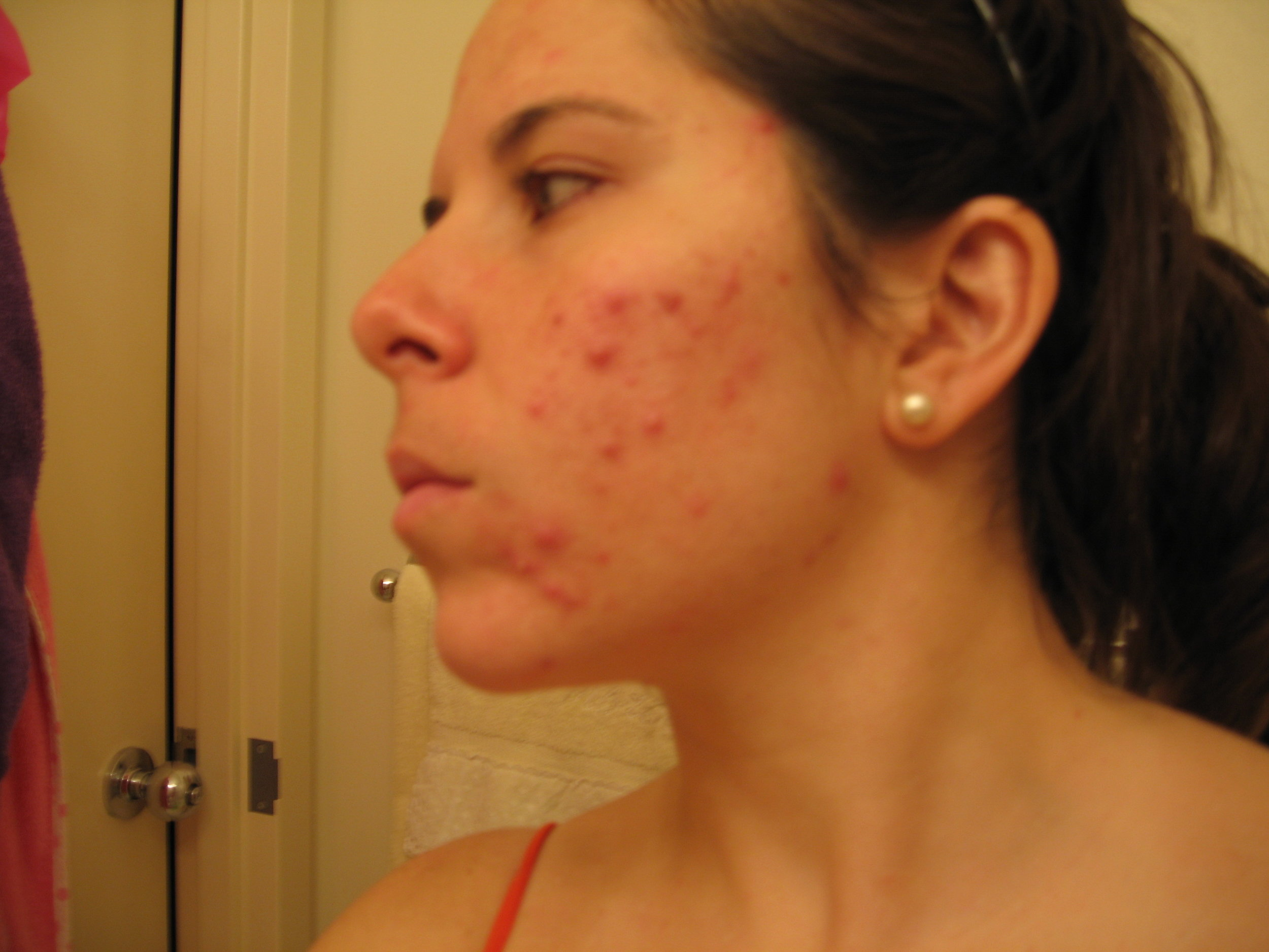 "My cystic acne in 2006. The picture that Facebook considered ""extremely undesirable"". Clearly nobody wants this, but for many this is the reality of their skin."
