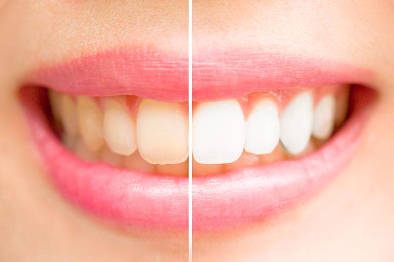 Achieve a white smile -