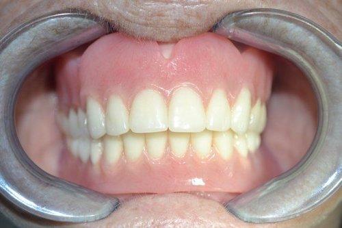 Case 53 — Frisco Family Dentistry