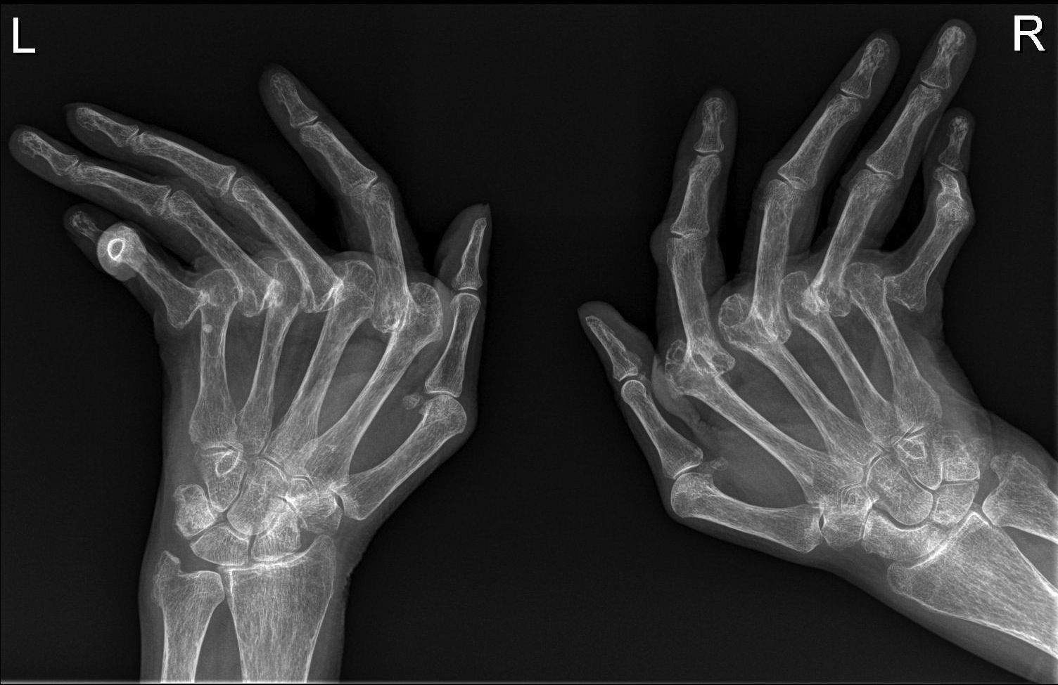 Two hands damaged by rheumatoid arthritis