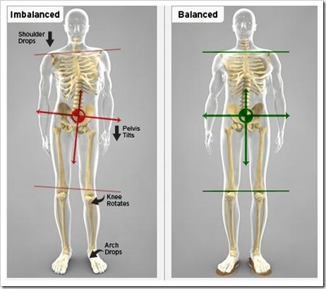 An example of the biomechanic changes when you don't have proper alignment.