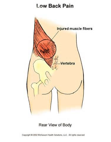 LOWER-BACK-MUSCLE-STRAIN-3.png