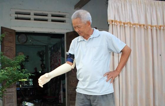 Ông Trọng cảm thấy rất thoải mái sau khi lắp bàn tay robot .