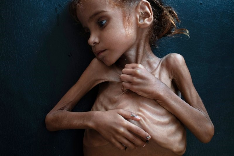 7-year-old Amal Hussain of Yemen courtesy of Tyler Hicks/The New York Times