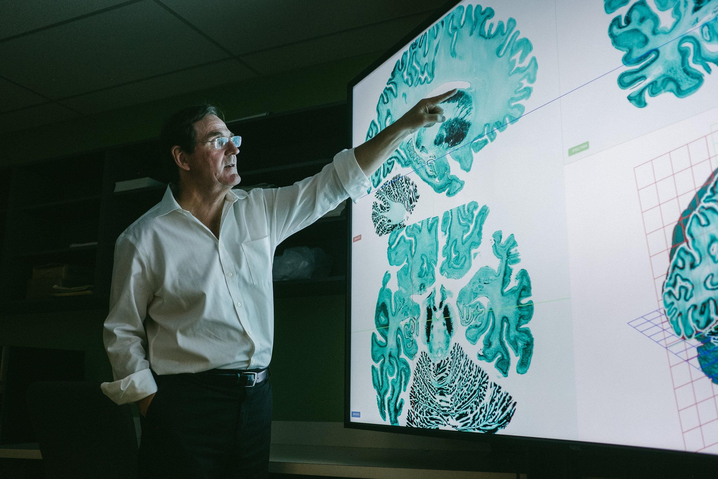 Alan Evans, professor of neurology and neurosurgery