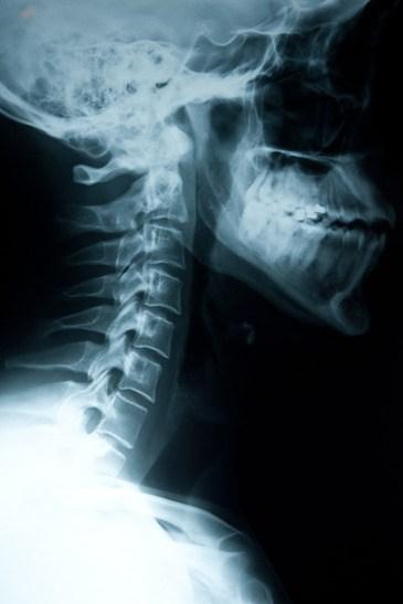 x-ray-neck-injury.jpg