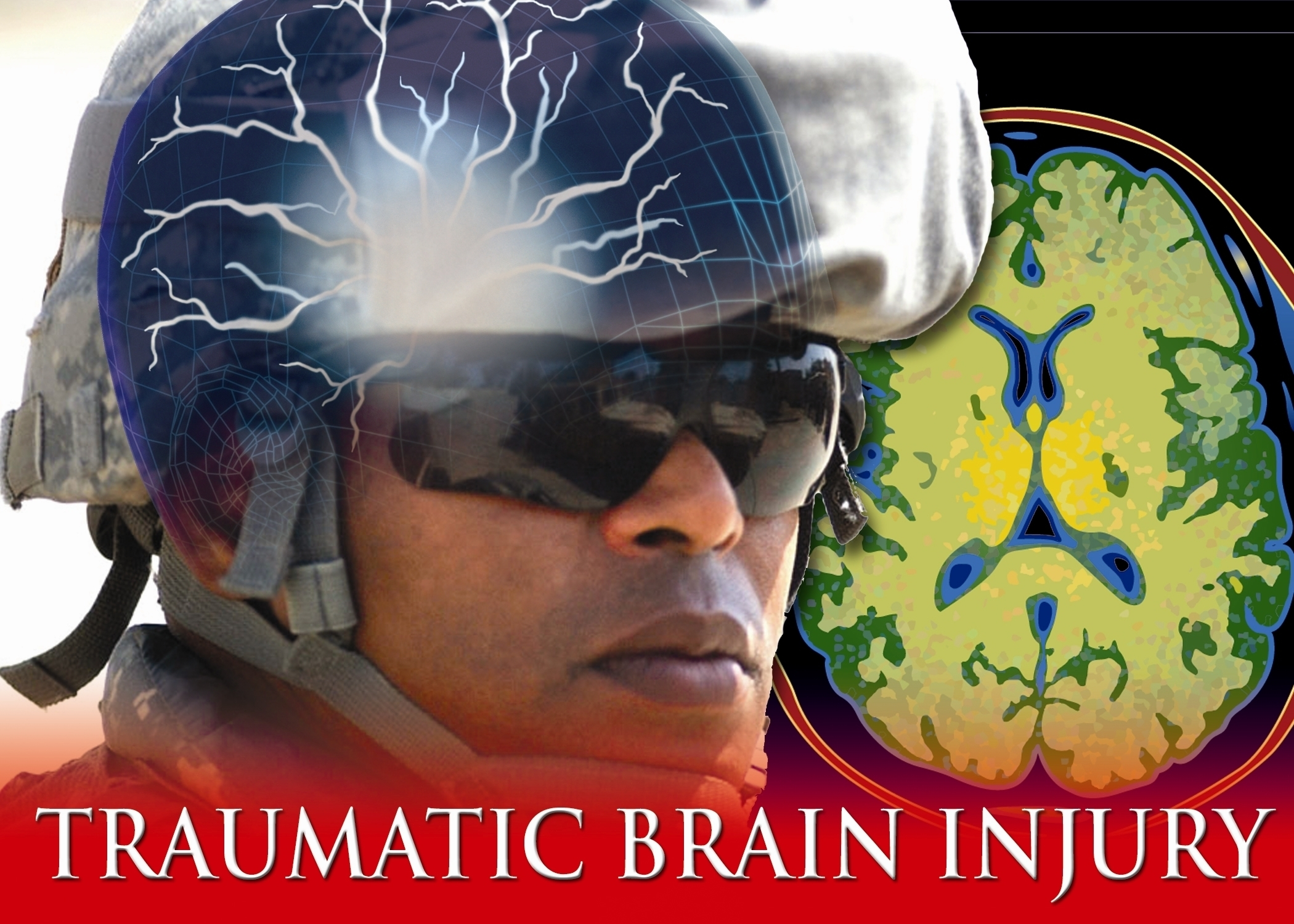 Traumatic brain injury, stroke