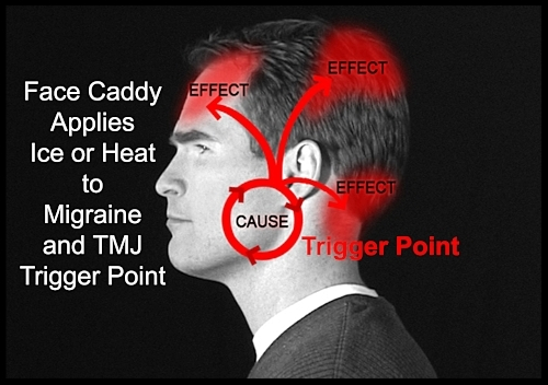 Our heat packs and cold packs apply therapy to the trigger points for TMJ and Migraines.