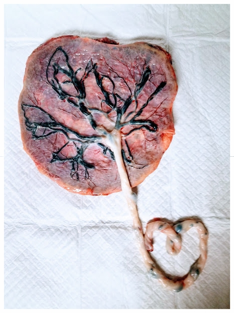 This is an image of a real placenta that has been rinsed clean, with intact umbilical cord fashioned into the shape of a heart.