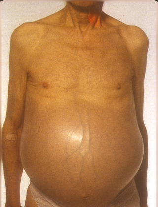 a patient with tense ascites