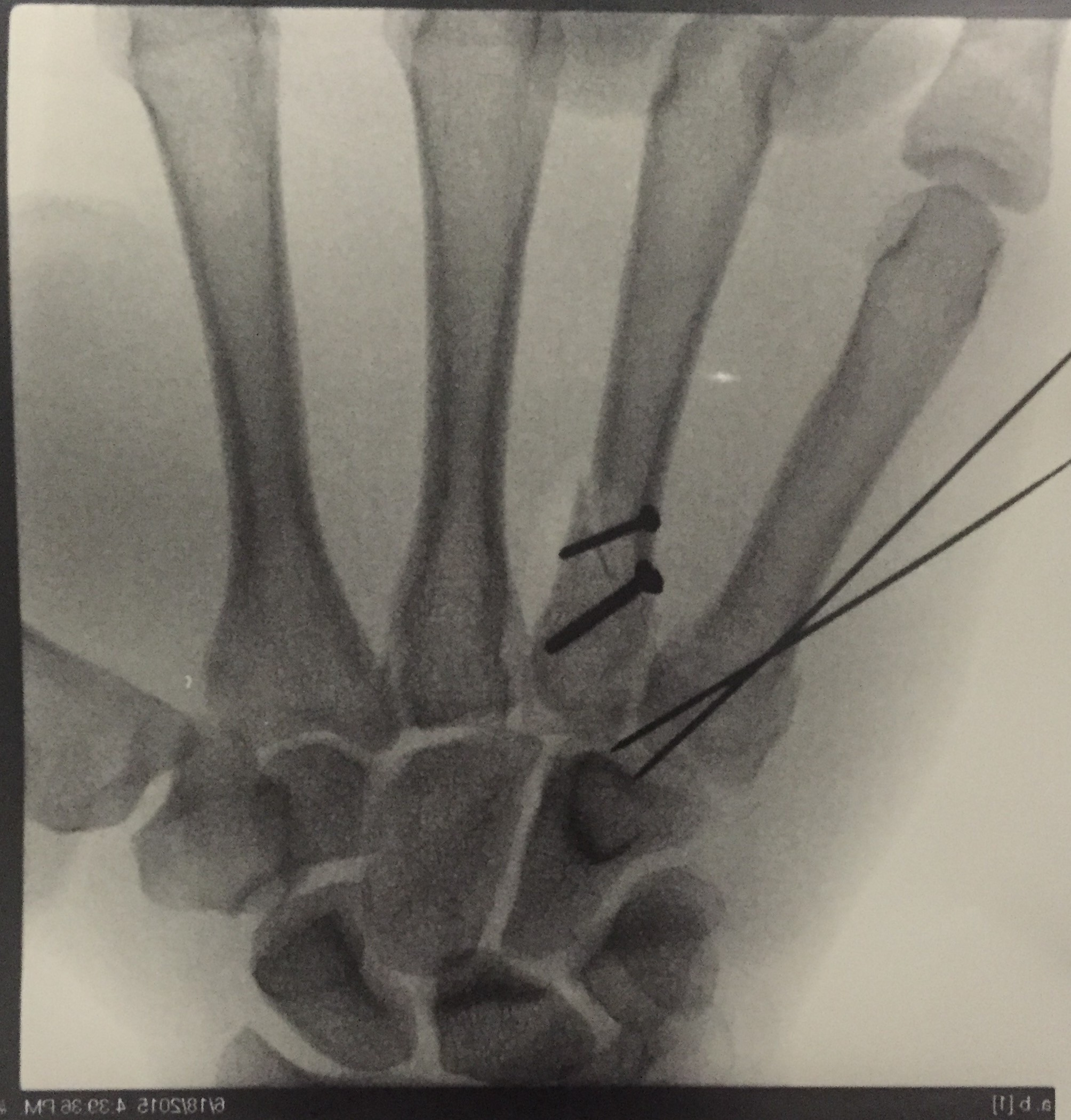 Avery's hand after surgery