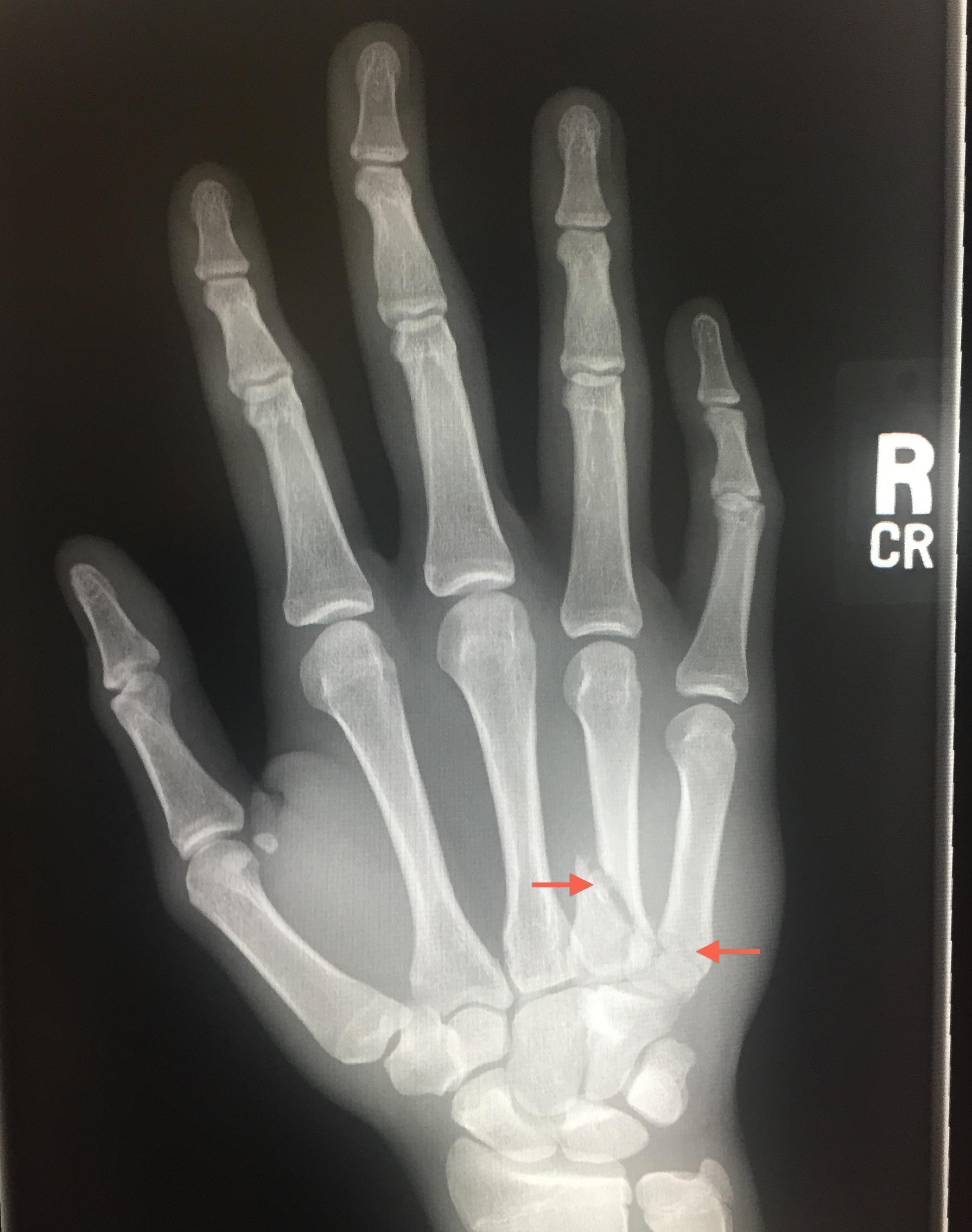 Avery's ER hand x-ray