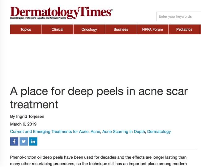 ChemicalPeel Acne Scar.jpg