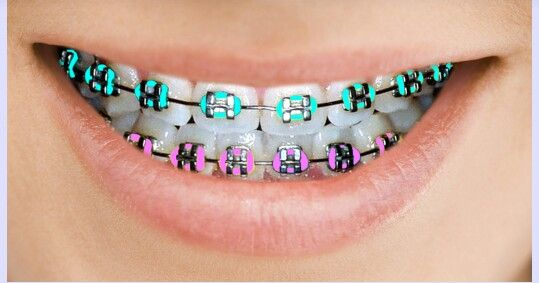 Colored Braces And Bands Murray Orthodontics