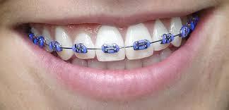 purple-braces.jpg