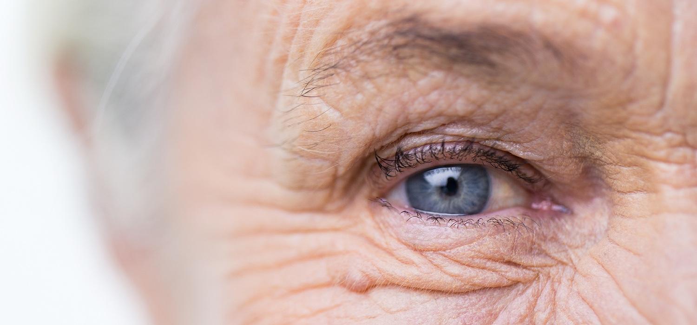women-blue-eye-ready-to-examine-for-lymph-congestion.jpg