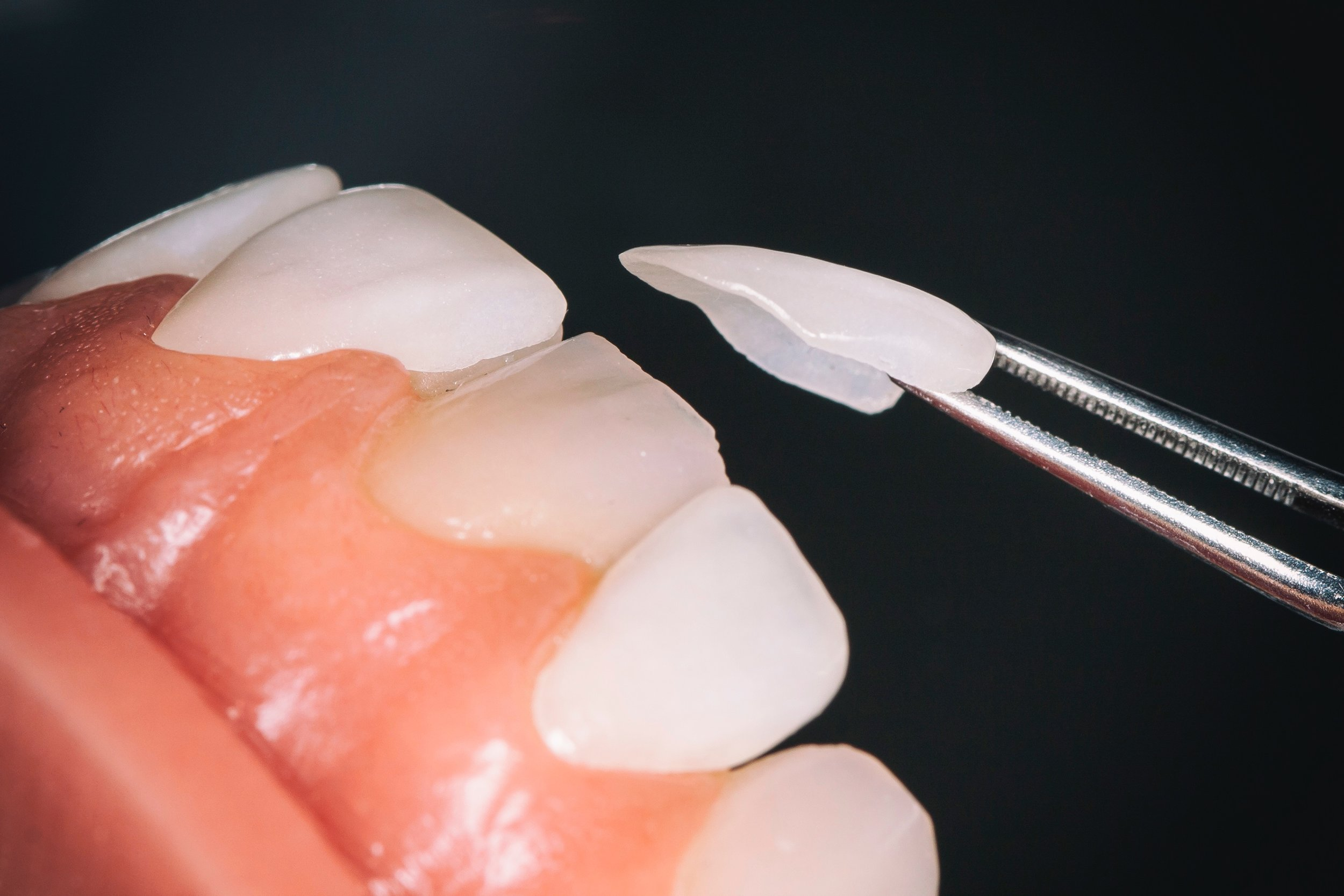 Veneers   Broadwater Dental D'Iberville, Mississippi