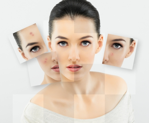 Acne Clearing and scar reduction